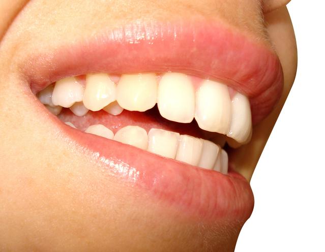 úsměv s bílými zuby